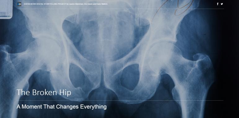 broken hip project